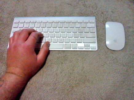 stung_hand.jpg